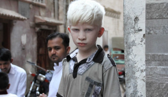 Read more about International Albinism Awareness Day