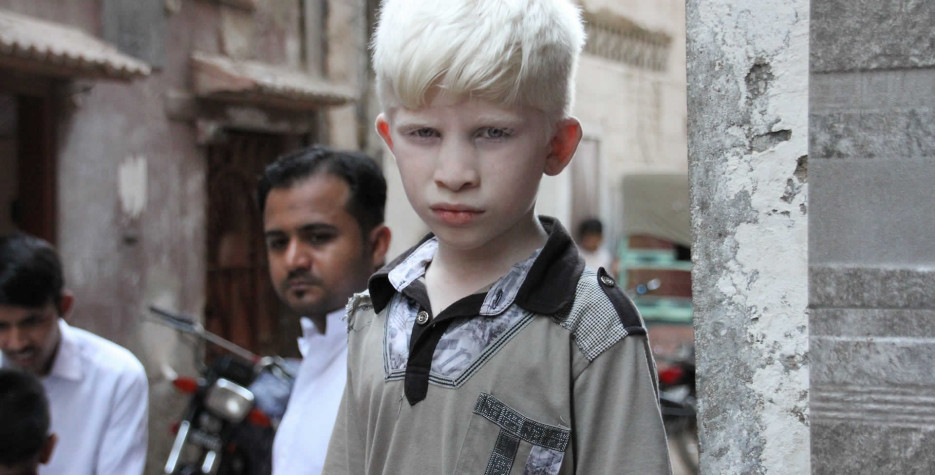 International Albinism Awareness Day in United Nations in 2022